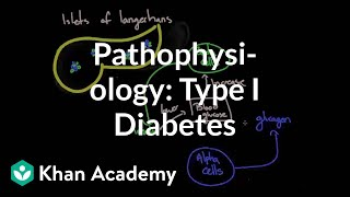 Pathophysiology – Type I diabetes | Endocrine system diseases | NCLEX-RN | Khan Academy