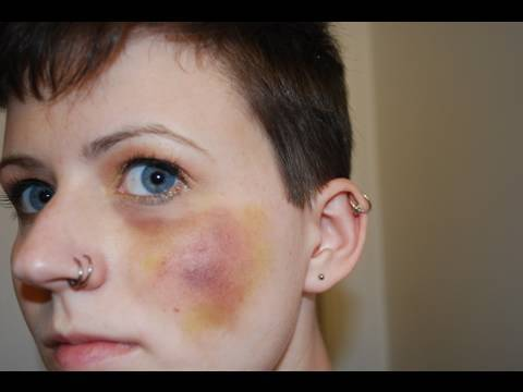 How To Make A Realistic Looking Bruise - YouTube