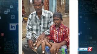 Indian boy with the world's biggest hands | Social Media | News7 Tamil