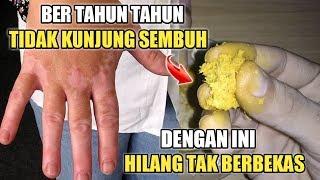 Cara Ampuh Mengobati Vitiligo.