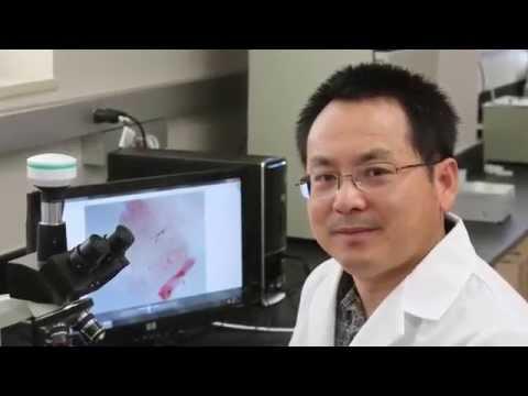 Jun Li Developing Malaria Vaccine