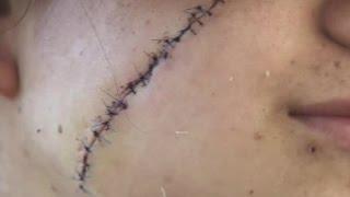 Joven quedó con cicatriz en su cara tras asalto frustrado - CHV Noticias