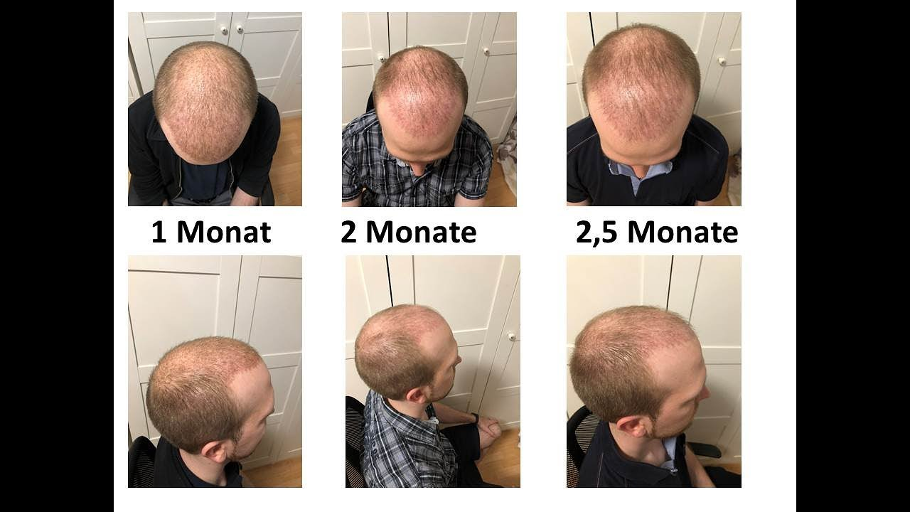 Nach 4 monaten haartransplantation 5 Haarwachstum nach