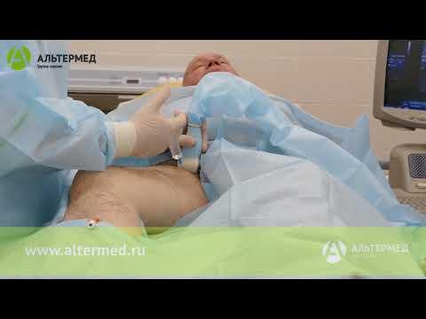 Эндовазальная лазерная коагуляция