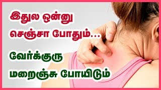 Home Remedies for  Prickly Heat  |  Heat Rash Verkuru Poga Natural Powder | Beauty Tips in Tamil
