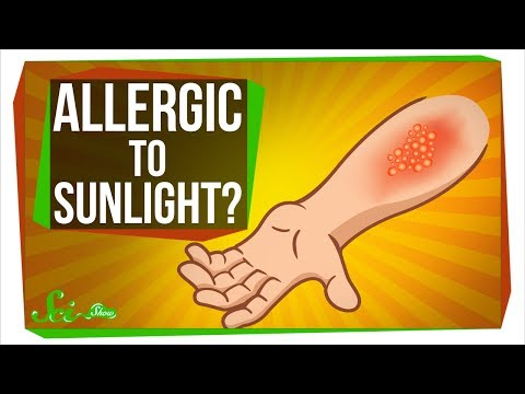 Can You Be Allergic To Sunlight?