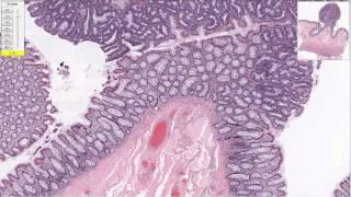 Дисплазия толстой кишки