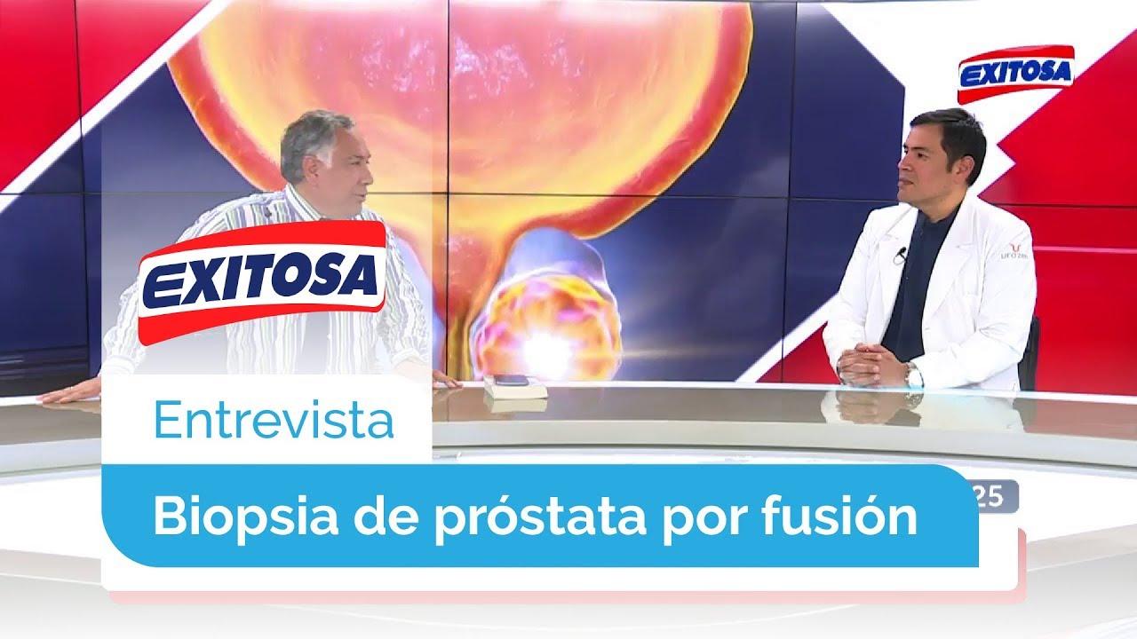 Biopsia de próstata de Mayo Clinic
