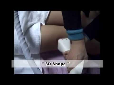 3D SHAPE θεραπεία