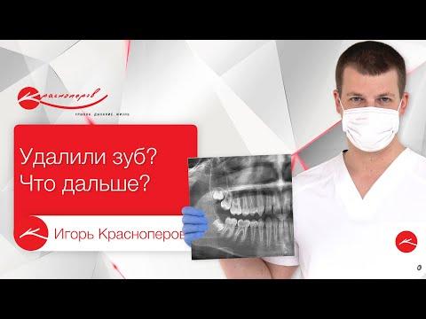 Как долго можно ничего не делать после удаления зуба? 🤔