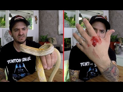 Morsure Serpent Asiatique ! Je Saigne Beaucoup
