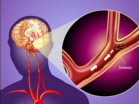 Stroke Prevention & Transient Ischemic Attack (TIA)