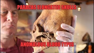 Paracas Elongated Skulls: They Were Not 100% Native American