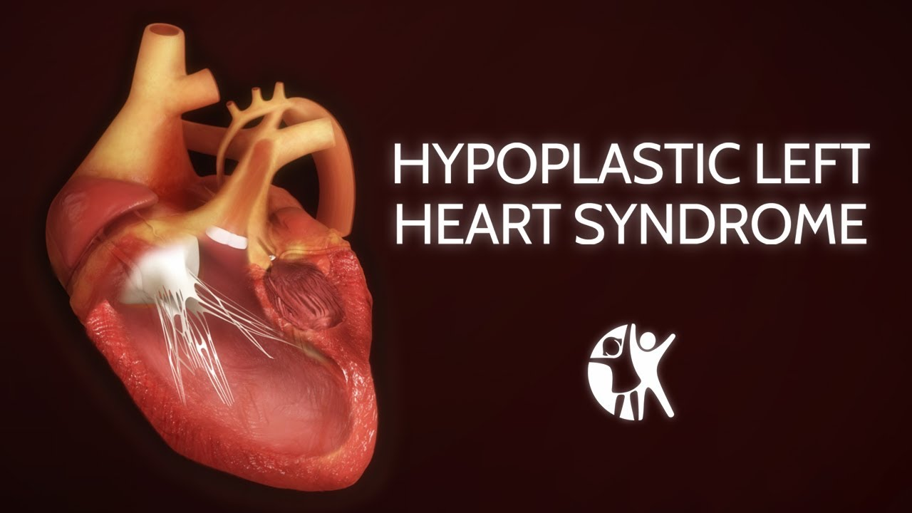 Hypoplastic Left Heart Syndrome (HLHS) - YouTube