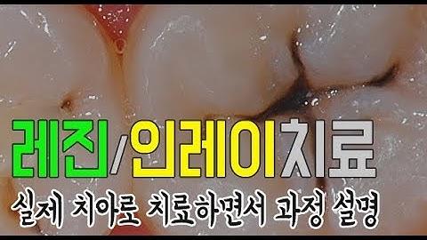 충치치료 레진/인레이 치료과정 [실제 치아로 치료하면서 설명]