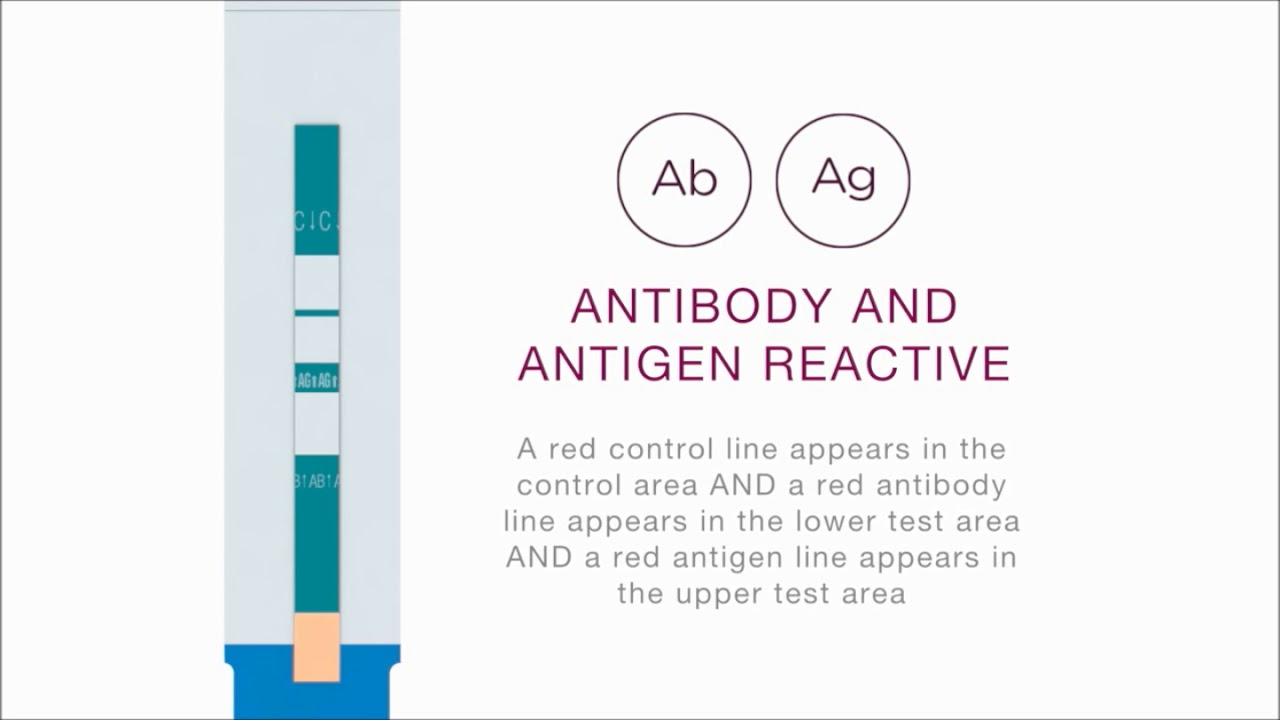 Alere HIV Combo (4th Generation HIV Test) – Aileenwo com