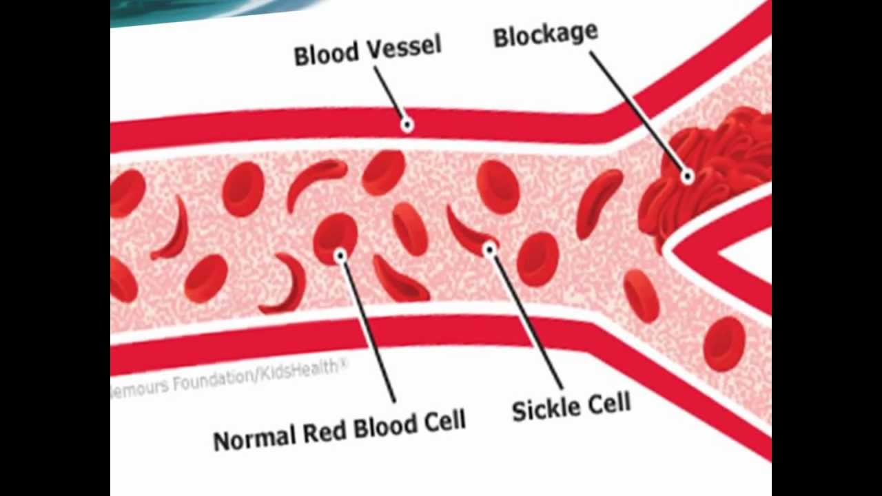 sickle cell report Free sickle cell anemia papers, essays, and research papers.