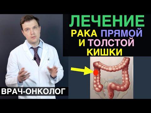 Рак толстой кишки - лечение рака толстой кишки и рака прямой кишки