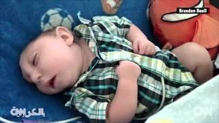 طفل مولود دون جزء من جمجمته يكمل عامه الأول    11-10-2015