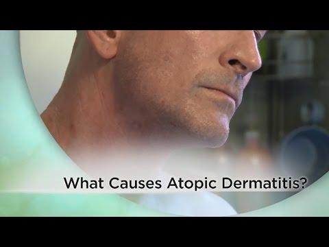 What causes atopic dermatitis? - YouTube