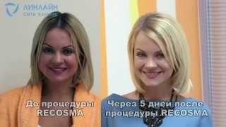видео Комплекс процедур омоложения лица