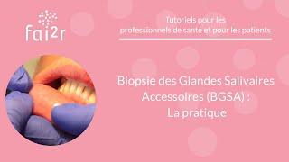 La pratique : Biopsie des Glandes Salivaires Accessoires (BGSA)