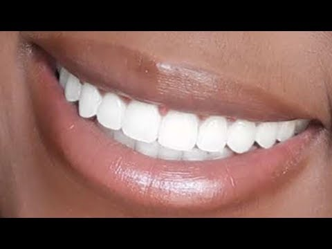 HOW I WHITEN MY TEETH AT HOME (ONLY $10) W/ MINI DEMO