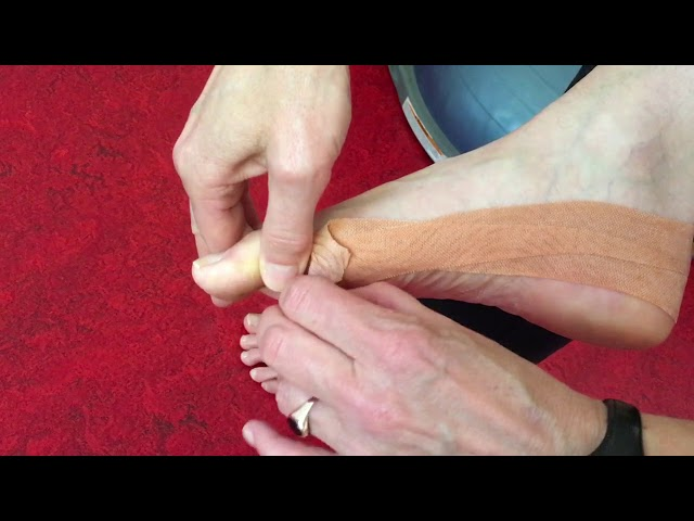 Hoe haal je tape van je voet