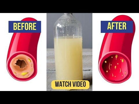 only-a-glass-of-this-juice-will-remove-clogged-arteries-and-control-blood-pressure