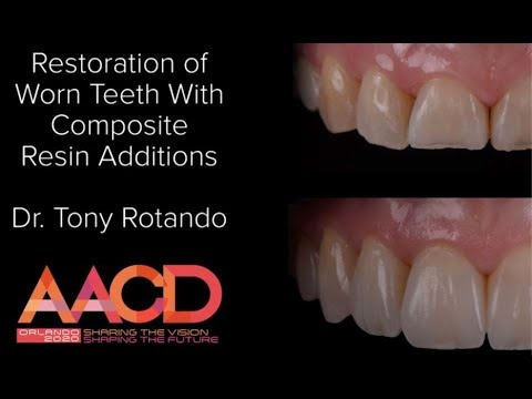 Restoration Of Worn Teeth With Composite Resin Additions