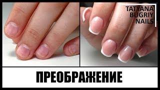 Ногти Грызуна/ Преображение Проблемных Ногтей/ Женственный Маникюр/ Наращивание на обкусышах