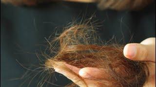 Волосы больше не выпадают витамины из аптеки за копейки от выпадения волос укрепление в домашних