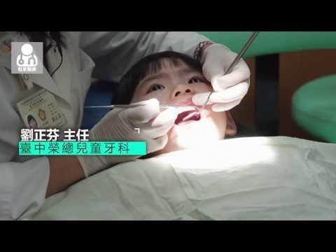 20170319學齡前兒童蛀牙率高達八成  一歲起就開始看牙醫