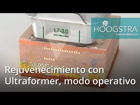 Rejuvenecimiento con Ultraformer, modo operativo (18041)