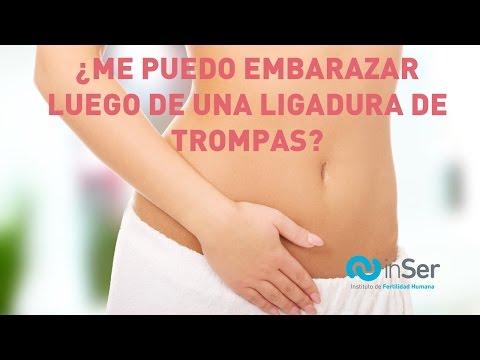 Se puede quedar embarazada con ligadura de trompas de forma natural