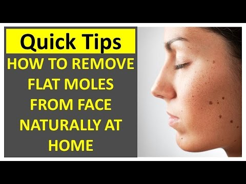 How To Remove Flat Moles Naturally