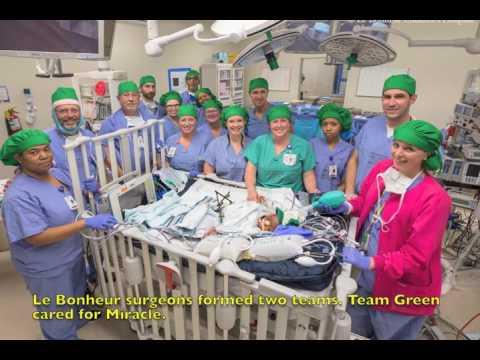Le Bonheur Children's Hospital in Memphis, Tenn., separates conjoined twins