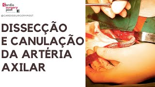 Cirurgia Narrada: Dissecção e canulação axilar na dissecção aguda da aorta