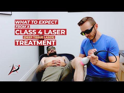 Class 4 Laser