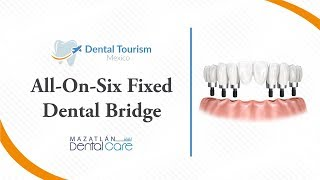 All on Six Fixed Bridge (Full Mouth Dental Implants) Mazatlan - Dental Tourism Mexico