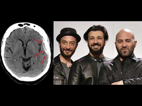 Come si riconosce l'ictus cerebrale? | Fondazione Umberto ...