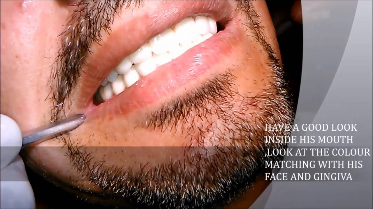 zirconium crown (zirconia) a full mouth case with dr amithsingh- india  -lucknow -aliganj