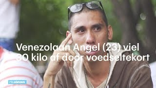 Hongersnood in Venezuela: Angel (23) viel 30 kilo af af door voedseltekort   - RTL NIEUWS