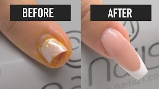 How to Fix a Broken Acrylic Nail Tip