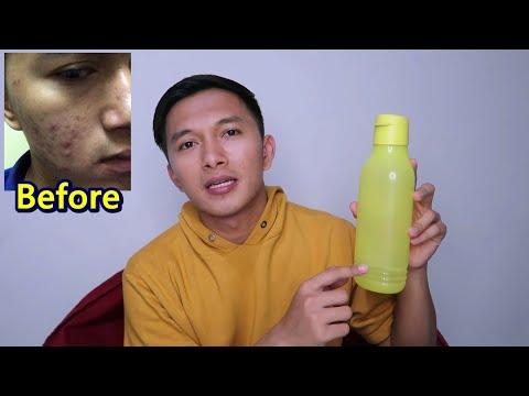 Video Bagaimana Cara Menghilangkan Komedo Dengan Air Garam