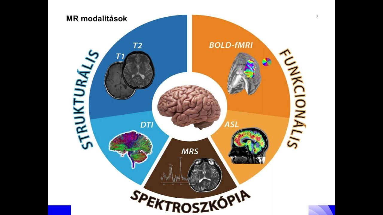 Az MRI parazitákat mutat e