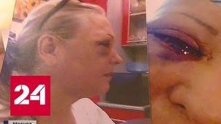 Новая жертва хирургов: москвичка почти ослепла после блефаропластики