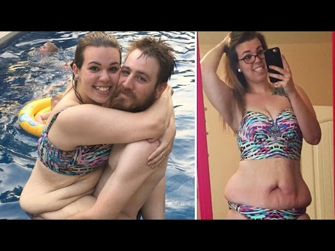 Thumbnail: Mom Who Lost 130 Pounds Bares Loose Skin to Show Realities of Weight Loss