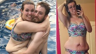 Mom Who Lost 130 Pounds Bares Loose Skin to Show Realities of Weight Loss