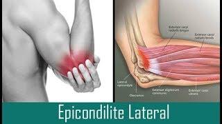 Nervosa exercícios braço de em lesão